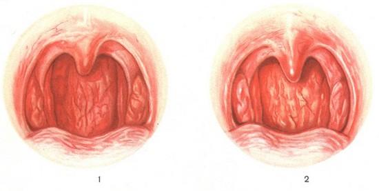 Здоровые и увеличенные миндалины