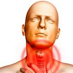 Аллергический фарингит: причины, симптомы, лечение