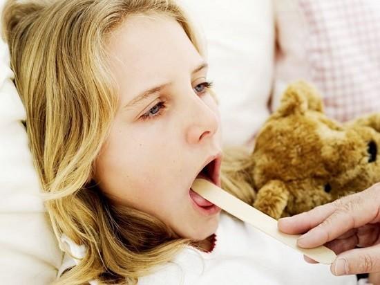 Субъективные ощущения при атрофическом фарингите не отличаются от симптомов других форм болезни