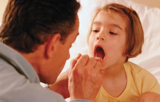 Масляным раствором хлорофиллипта можно смазывать детям миндалины