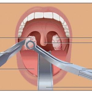 Хирургическое иссечение миндалин