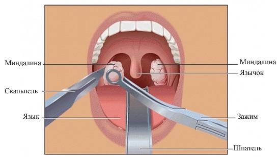 Хирургическое иссечение миндалин один из самых известных методов