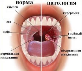 от каких продуктов запах изо рта