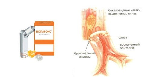 Биопарокс применяется для лечения острых и хронических инфекционно-воспалительных заболеваний дыхательных путей
