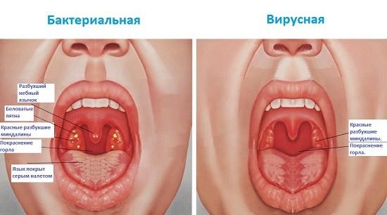 Отличие симптомов бактериальной и вирусной ангины