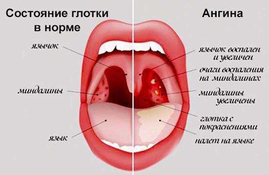 Как выглядит горло при ангине