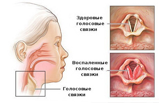 Воспаление гортани у ребенка фото