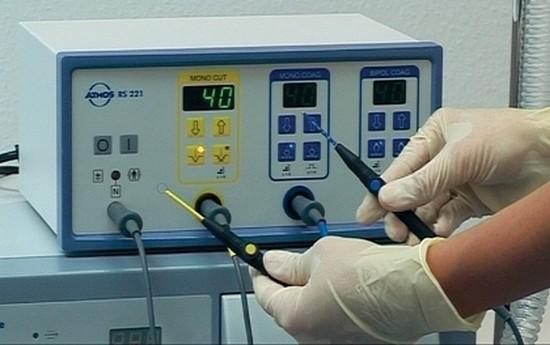 Радиоволновая тонзиллэктомия - эффективный и безопасный метод