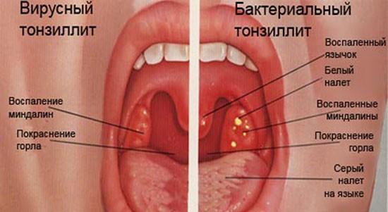 Симптомы вирусного и бактериалього тонзиллита