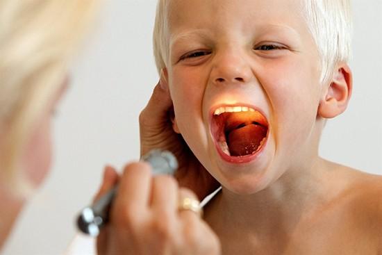 Заглоточный абсцесс у ребенка