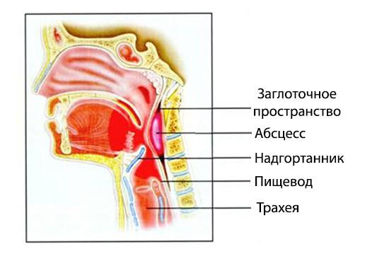 Расположение заглоточного абсцесса