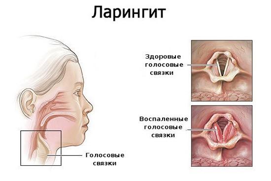 Воспаление голосовых связок - ларингит