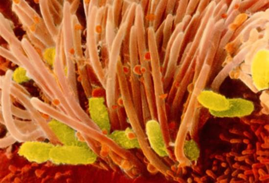 Коклюш Bordetella Pertussis
