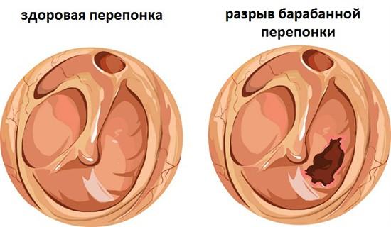 Мезотимпанит уха